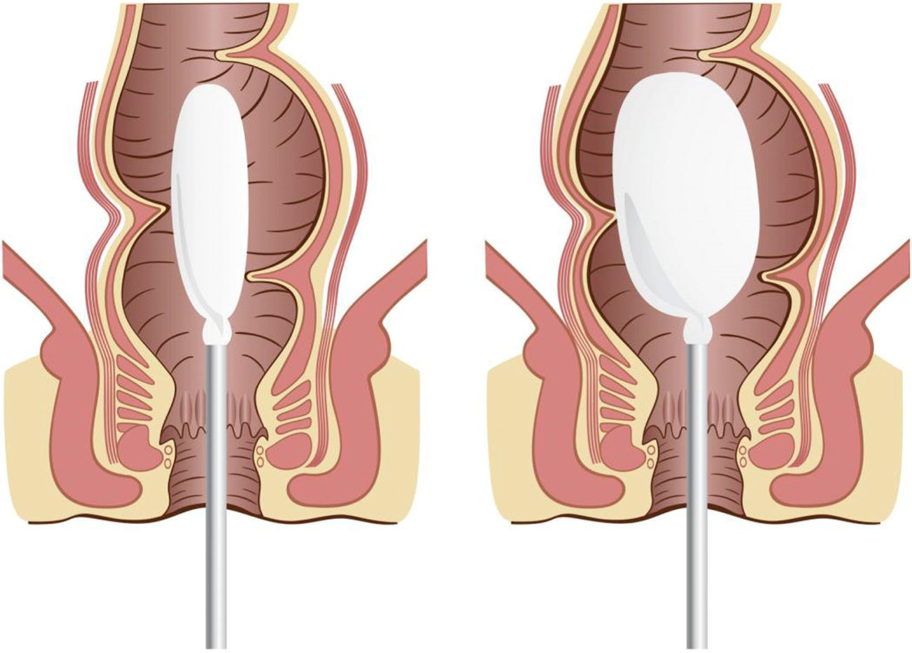 Anorectal manometry کلیات