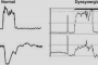 رفلاکس ،پی اچ متری و مانومتری :اطلاعات برای بیمار
