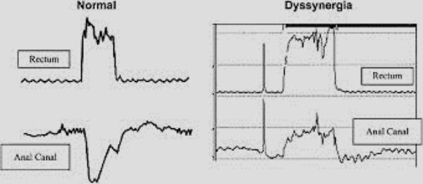 معیارهای تشخیص دفع دسی سینرژیک (Dyssynergic defecation)