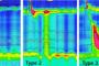 خلاصه ئی از (Type II achalasia (with esophageal compression