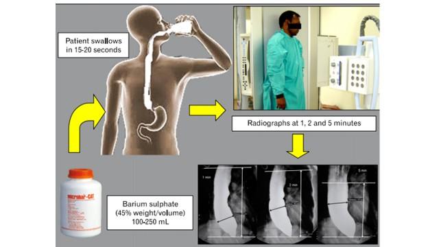 (Timed barium esophagogram (TBE