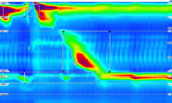 High resolution manometry analysis:Integrated relaxation pressure