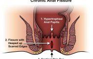 درمان داروئی  fissure یا شقاق مقعد